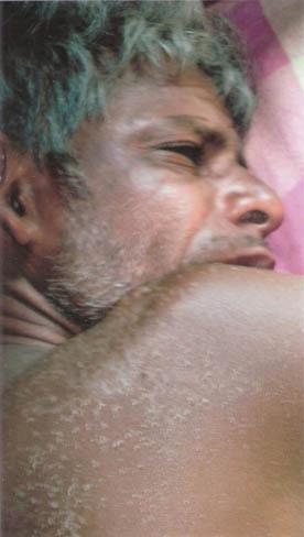 injured fisherman